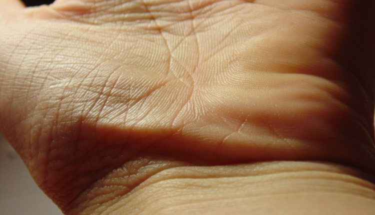 mains-peau-crevasse